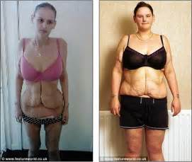 Gastric bypass before and after pictures men tknews britain s fattest