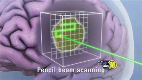 Pencil Beam Proton Therapy pencil beam protons zap cancer abc30