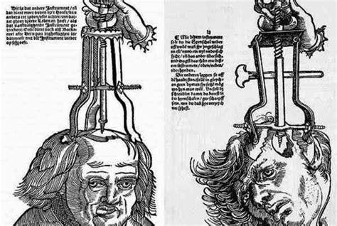imagenes historicas escalofriantes escalofriantes fotos hist 243 ricas de tratamientos m 233 dicos
