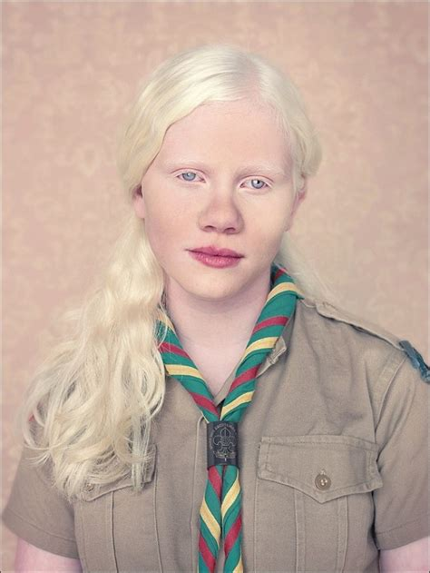 albino hair feel albinos project by gustavo lacerda