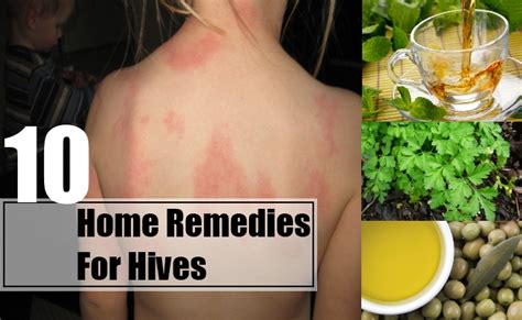 10 home remedies for hives treatments cure for