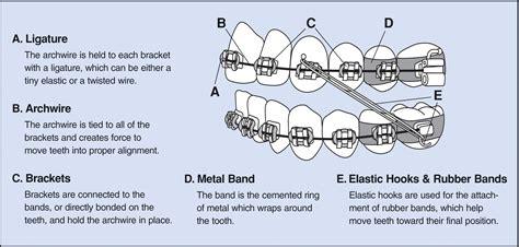 Description Of An Orthodontist by How Do Braces Move Teeth Zaki Orthodontics Va