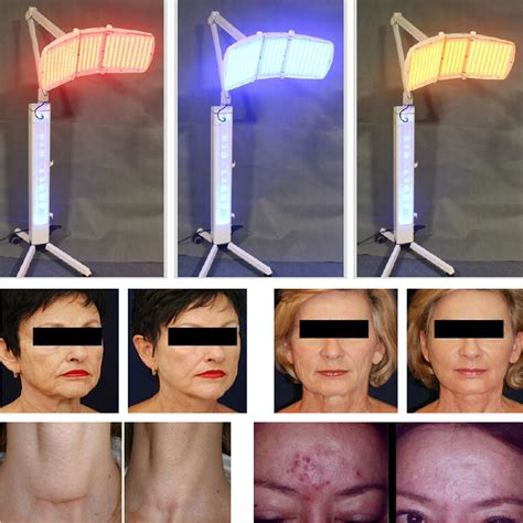 anti aging light therapy lt spl20 buy 1420 led pdt led bio light therapy photon