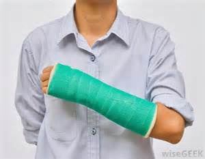 arm cast colors what are the common causes of arm swelling with pictures