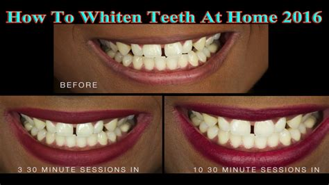 how to whiten teeth at home 2016 whiten teeth at home