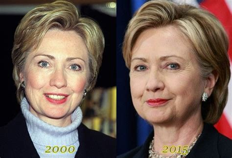 did hillary clinton have plastic surgery 2015 clinton plastic surgery 2015 hillary clinton plastic