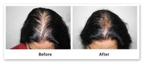 gpnotebook female pattern hair loss плазмолифтинг для волос отзывы показания