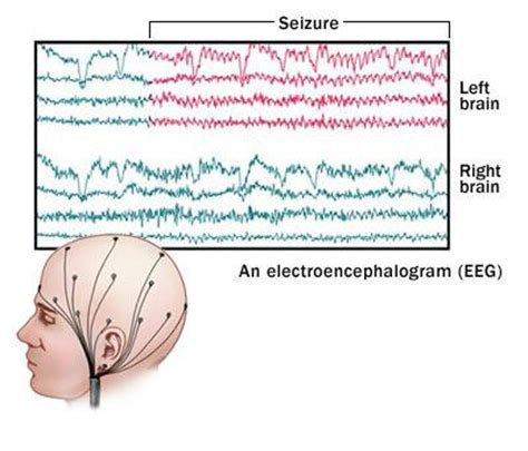 eeg pattern in math science inspiration what is an electroencephalogram eeg