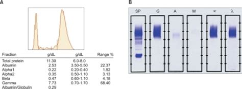 protein 7 7 g dl a a monoclonal peak is observed in the gammaglobulin