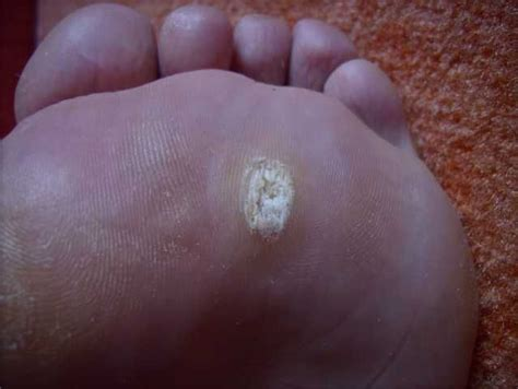 Brandon Fl Podiatrist Makes Walking Easier After Removal Planters Wart Pictures