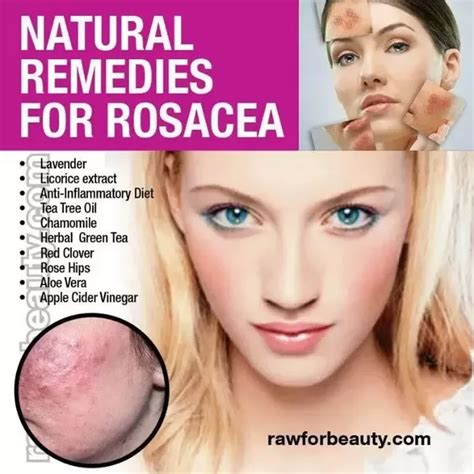 best treatment for acne rosacea are there any new treatments for rosacea quora