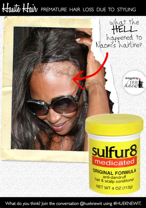 no edges thinning edges hair loss bald spots youtube related keywords suggestions for hair edges regrowth