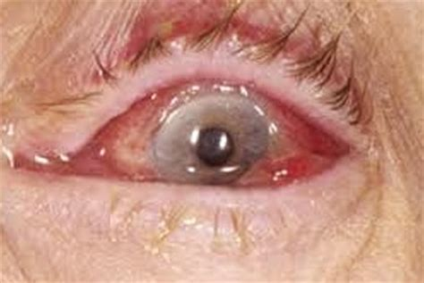 has mucus in eye mucus in eye types pictures home remedies yellow mucus