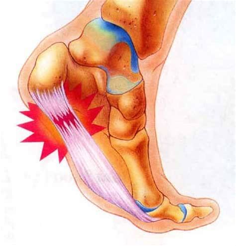 What Is Planter Fascitis fasciitis plantar chronic plantar fasciitis fasciitis