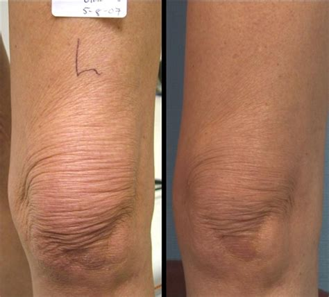lipo light lax reviews contouring nyc laser skin surgery center nyc