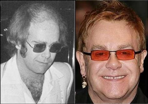 celebrity hair transplants before after new celebrity hair transplants before and after
