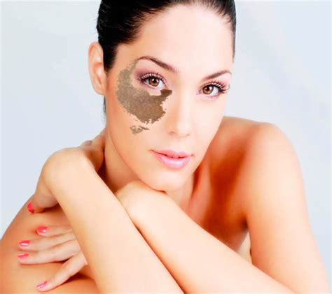 skin laser clinic medicine advanced aesthetics nevus