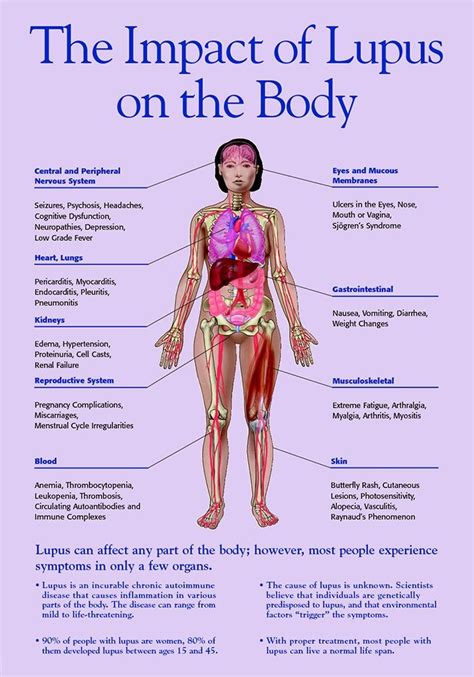 28 best facts about lupus images on facts