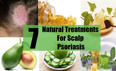 7 treatments for scalp psoriasis how to cure