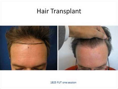 new hair transplant technology latest technology in hair transplantation webinar from a