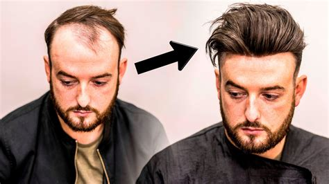 Hairstyles For Hair Loss by Mens Hair Loss Treatment Hairstyle Transformation Does