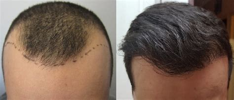 how thick is 1000 hair graft greffe de cheveux fue avec jonathan r 233 sultat fantastique