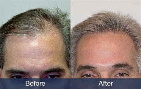 how much does expression hair cost how much does a small hair transplant cost