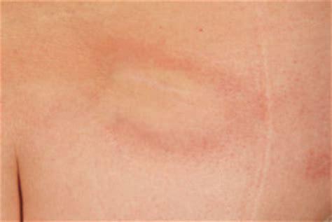 windpocken bis wann ansteckend blickdiagnostik infektionskrankheiten scharlach bis
