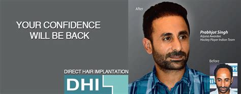 dhi hair transplant reviews top 10 hair transplant clinic in malaysia blog review