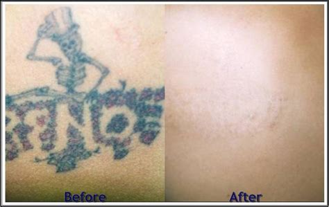 how does tattoo removal work removing a how much does removal cost