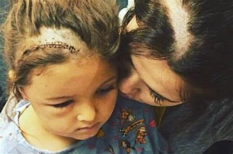younger hair after brain surgery mum shaves matching scar into hair to support daughter 5