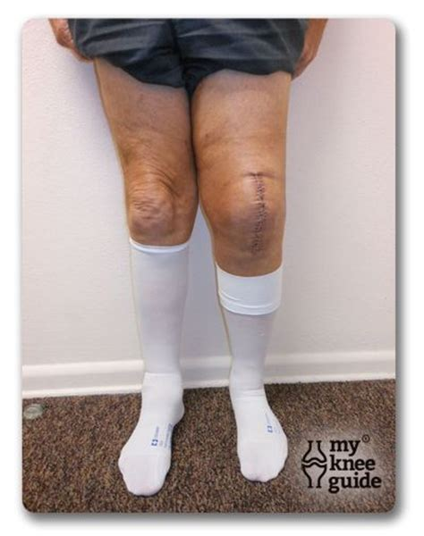 Can Person With Knee Replacement Get Ionic Foot Detox by Blood Clots Also Known As A Dvt Posts And Blood
