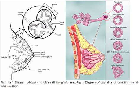 diagram of the breast breast cancer and the of herbal medicine