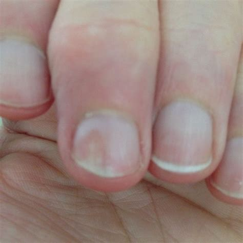 nail bed pain 27 best nail psoriasis information images on pinterest