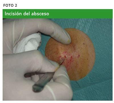 conejera en la piel drenaje de un absceso amf 2012 paso a paso
