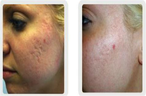 diode laser for acne scars acne treatments and laser