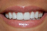 diy dental bonding porcelain veneers are thin pieces of durable tooth