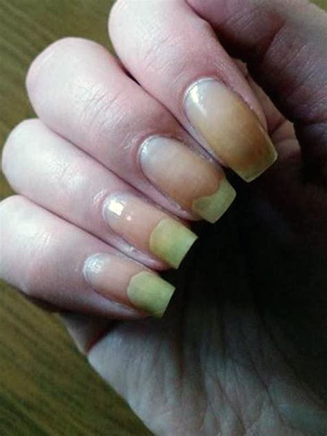 toenail lifting from nail bed toenail lifting from nail bed 28 images image gallery