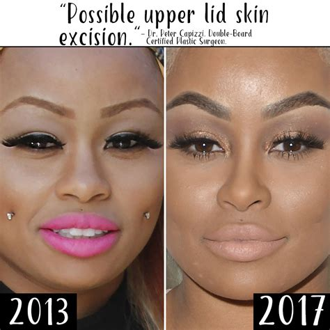 Plastic Surgery Sweepstakes - plastic surgery see blac chyna s body change over time 5