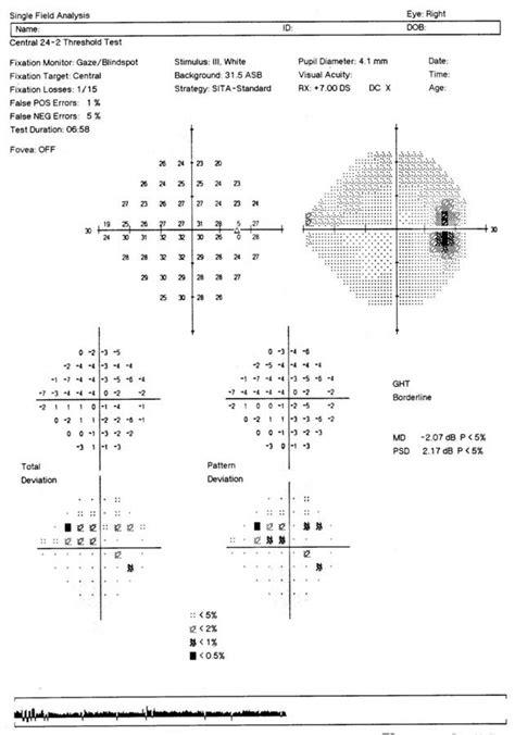 pattern deviation analysis optician
