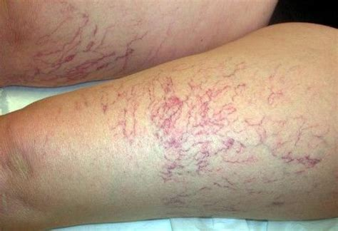 capezzoli interni vene varicose ecco come prevenirle
