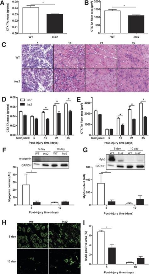 cross sectional t test figure 1 inhibition of plasminogen activator inhibitor 1