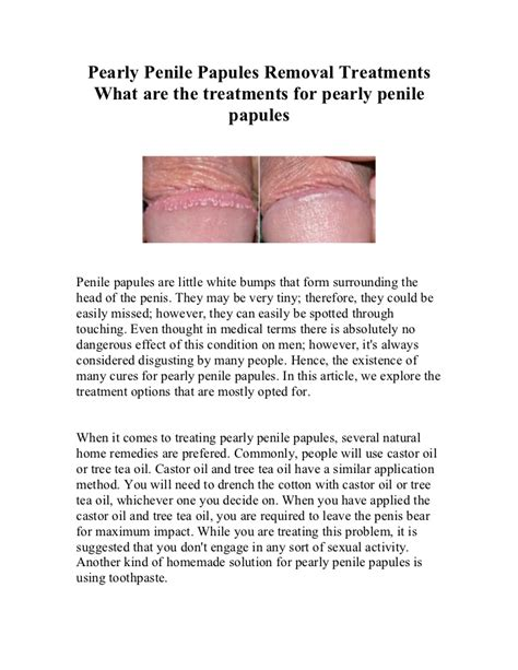 pearly penile papules removal treatments at home