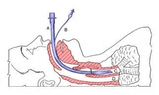 What Is Non Invasive Positive Pressure Ventilation Tracheal Tube Wikipedia