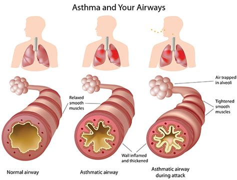 salt l for copd the breakdown caf 233 asthma