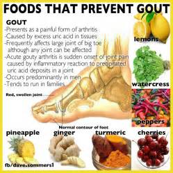 how to avoid gout and how to cure gout using home remedies