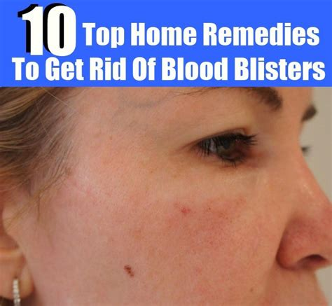 10 steps to get rid of chigger bites howtoxp com top 10 home remedies to get rid of blood blisters diy