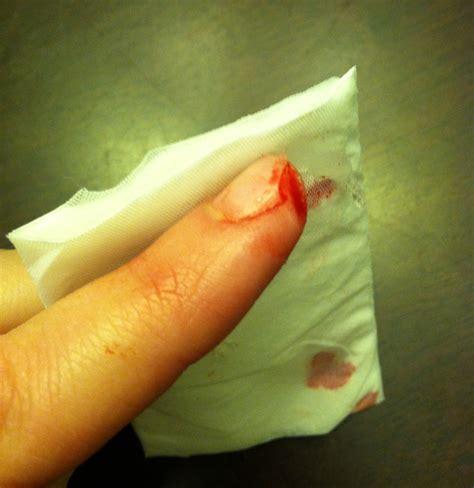 how to finger alison cut off her finger blog