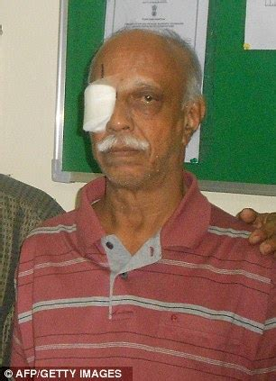 pensioner with mystery eye condition shocked as doctors