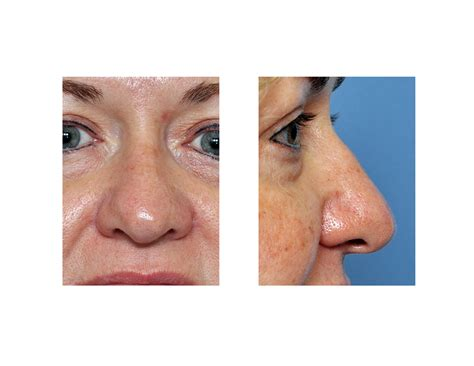 has nose rhinoplasty archives page 16 of 26
